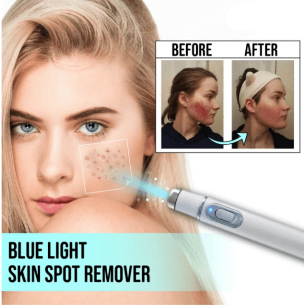 Blue Light Skin Spot Remover
