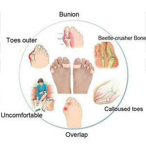 Orthopedic Bunion Corrector 2.0 (1 PAIR)