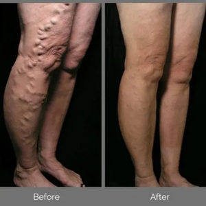 Varicose Veins Herbal Patch