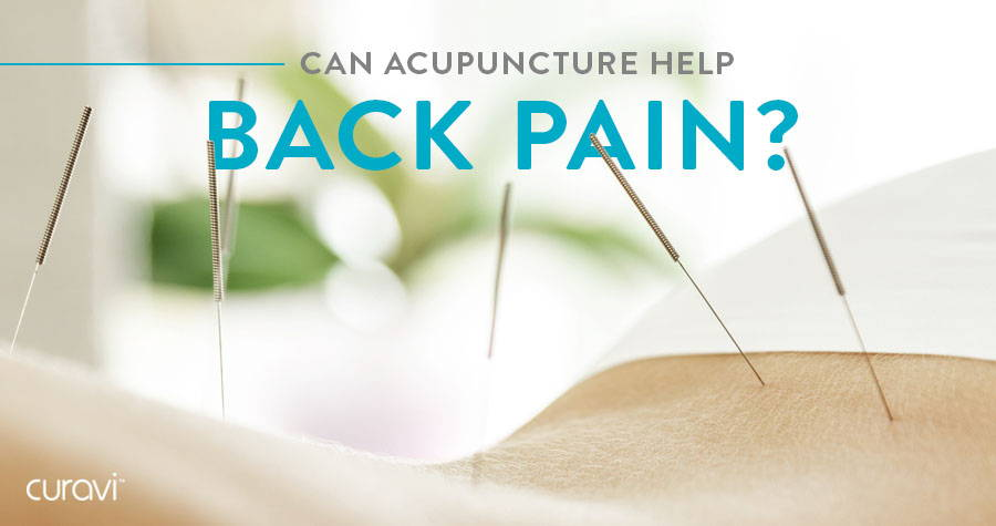 Can Acupuncture Help Back Pain?