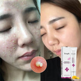 1pcs Face Acne Cleaning Cream Skin Care Remove Repair Pimple Acne Quickly Face Acne Cream Remover Anti Acne Treatment Hot TSLM1 - The most popular products on Tiktok | GOWOW