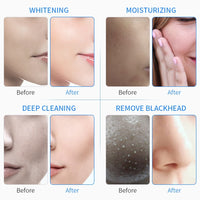 6 In 1 Water Oxygen Jet Aqua Peeling Hydra Beauty Facial Skin Deep Cleansing Machine Professional Hydro Dermabrasion SPA Salon - The most popular products on Tiktok | GOWOW