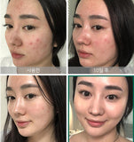 SOME BY MI AHA BHA PHA 30 Days Miracle Toner 150ml SomeByMi Facial Toner Serum Blackheads Remove Acne Treatment Skin Exfoliating - The most popular products on Tiktok | GOWOW