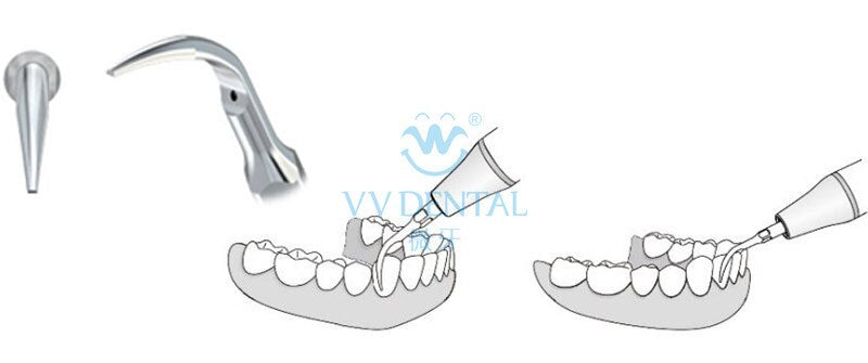 Teeth cleaning and scaling with whitening kit
