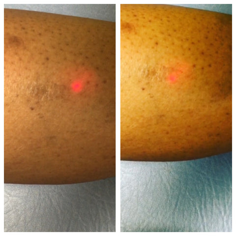 Laser Dark Spot Treatment