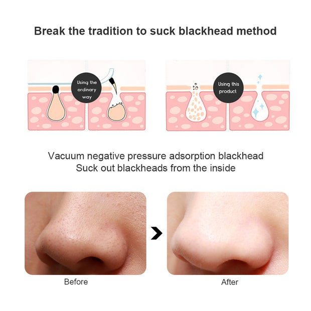 Electric blackhead cleaning instrument