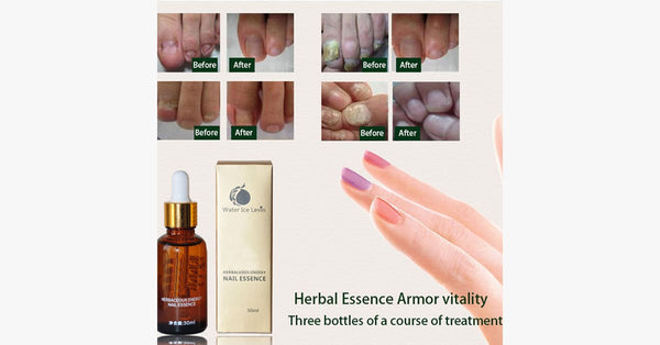 Nail Gel Miracle Essence [PRE-RELEASE] - FREE SHIP DEALS