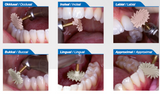 Removing and shaping (PM2039) - Dental Burs