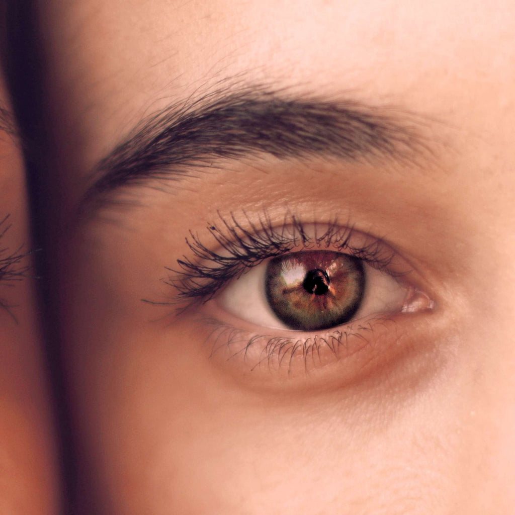 Surprising causes of dark circles