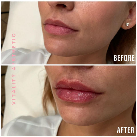 Before After Dermal Fillers