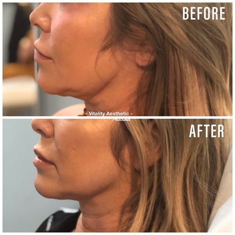 Fat Dissolving Kybella Before & After