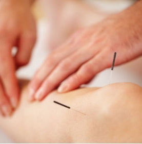 Acupuncture in Nerja