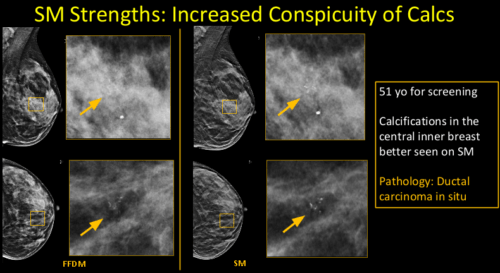 2-D Mammography Synthesized from Tomosynthesis: Strengths, Pitfalls, Artifacts - Efficiency Learning Systems