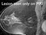 Breast Biopsy with MRI: How I do it.