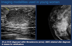 Breast Cancer in Young Women (Under the Age of Forty)