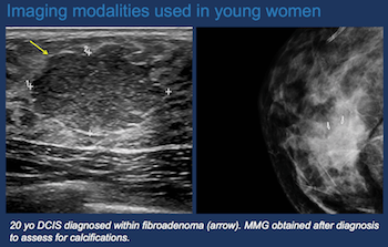 Breast Cancer in Young Women (Under the Age of Forty) - Efficiency Learning Systems