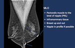 Breast Cancer Screening in the era of Tomosynthesis