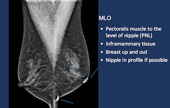 Breast Cancer Screening in the era of Tomosynthesis - Efficiency Learning Systems