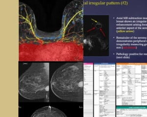 Breast Imaging CME: Hot Topics - Efficiency Learning Systems