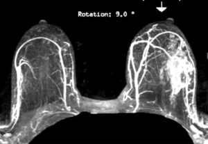 Breast MRI: Comprehensive - Efficiency Learning Systems