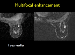 Breast MRI: Quick and Easy