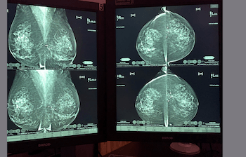 Breast Tomosynthesis:  Comprehensive Breast Imaging Cases
