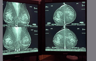 Breast Tomosynthesis:  Comprehensive Breast Imaging Cases - Efficiency Learning Systems