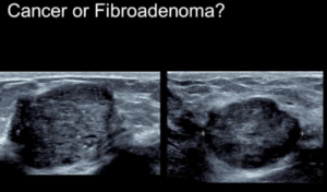 Breast Ultrasound: Comprehensive - Efficiency Learning Systems