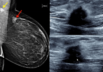 Breast Ultrasound with Dr. Gundry - Efficiency Learning Systems