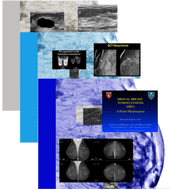 Combine Topics:  Breast Ultrasound, Breast Tomosynthesis (3D Mammography), & Breast MRI - Efficiency Learning Systems