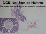 DCIS: How MRI Helps