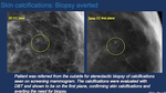 Diagnostic Breast Imaging and Interventions in the age of Digital Breast Tomosynthesis