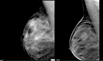 Digital Breast Tomosynthesis: A Better Mammogram - Efficiency Learning Systems