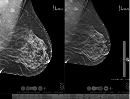 Digital Breast Tomosynthesis Interpretation: Teaching Case Reviews - Efficiency Learning Systems