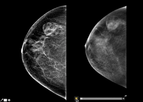 Digital Breast Tomosynthesis with Dr. Ojeda-Fournier