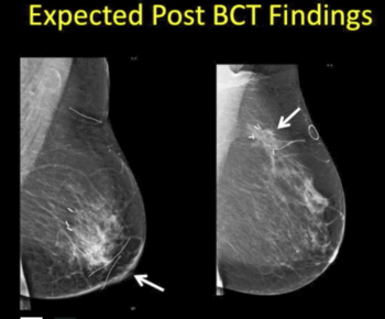 High Risk Surveillance – Mammographic and MRI Surveillance after Breast Cancer - Efficiency Learning Systems