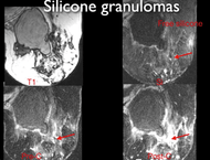 MRI of Women with Silicone Augmentation
