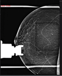Tomosynthesis (3D) Breast Biopsy