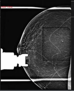 Tomosynthesis (3D) Breast Biopsy - Efficiency Learning Systems
