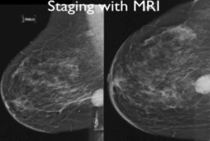 When is Breast MR Appropriate in Clinical Practice? - Efficiency Learning Systems