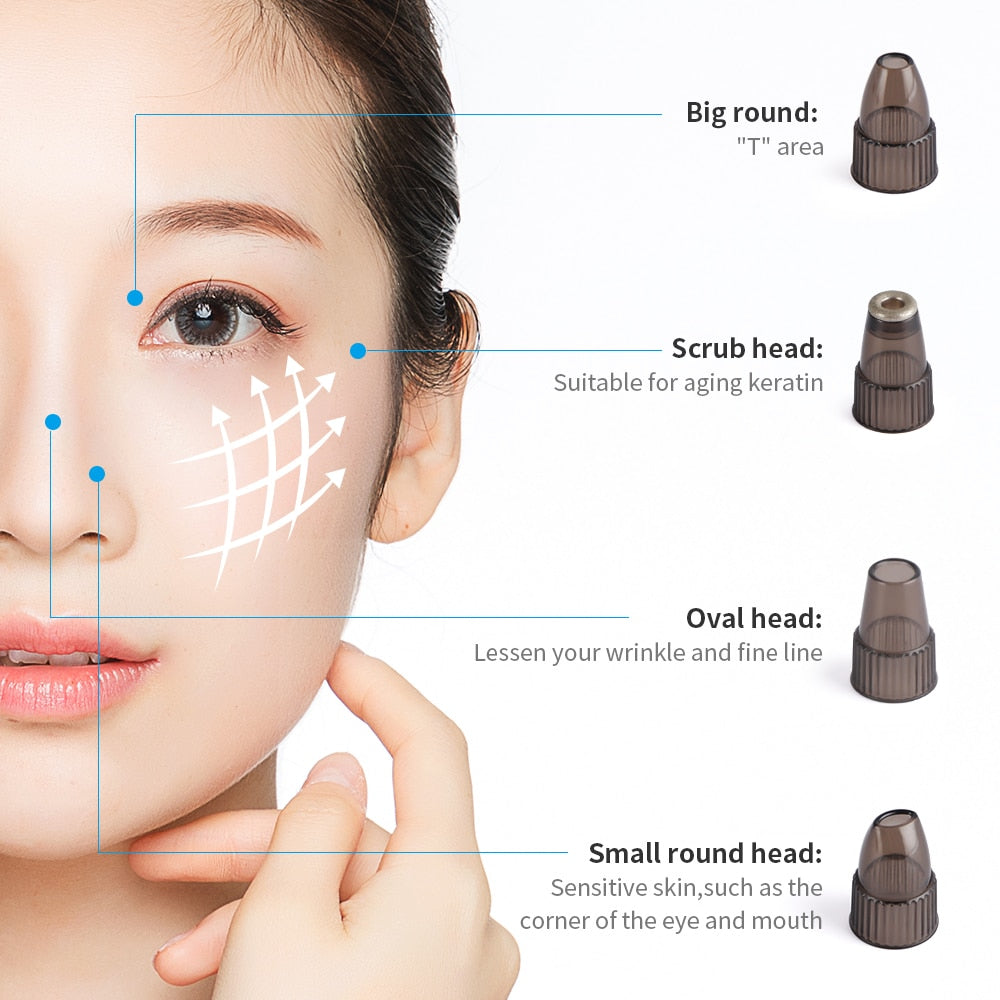 Rechargeable Vacuum Pore Cleaner Blackhead Acne Removal