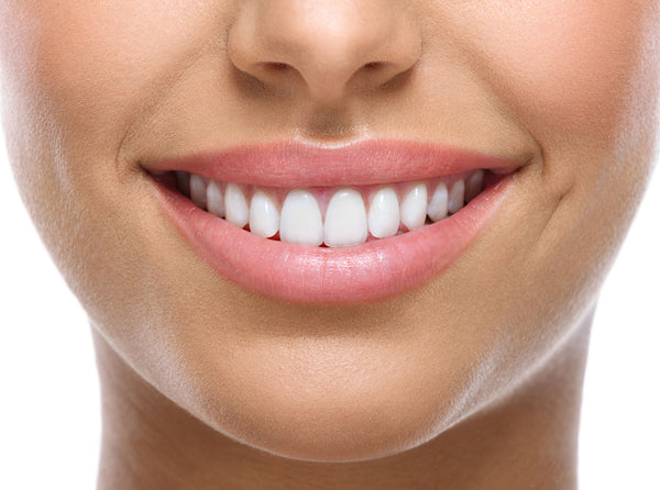 Beneficios del blanqueamiento dental