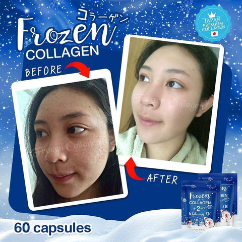Frozen Collagen Authentic from Thailand BUY 1 TAKE 1 with Snail White –  Gorgeousmeshop