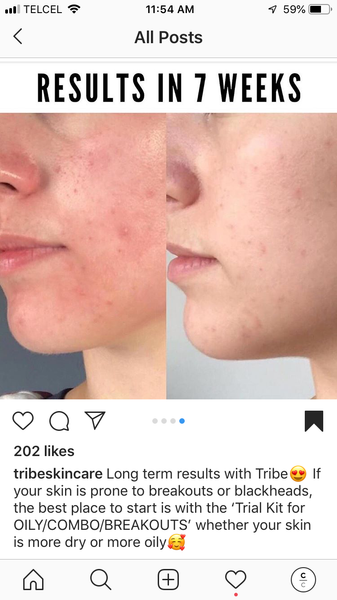 Before and after image cheek with acne