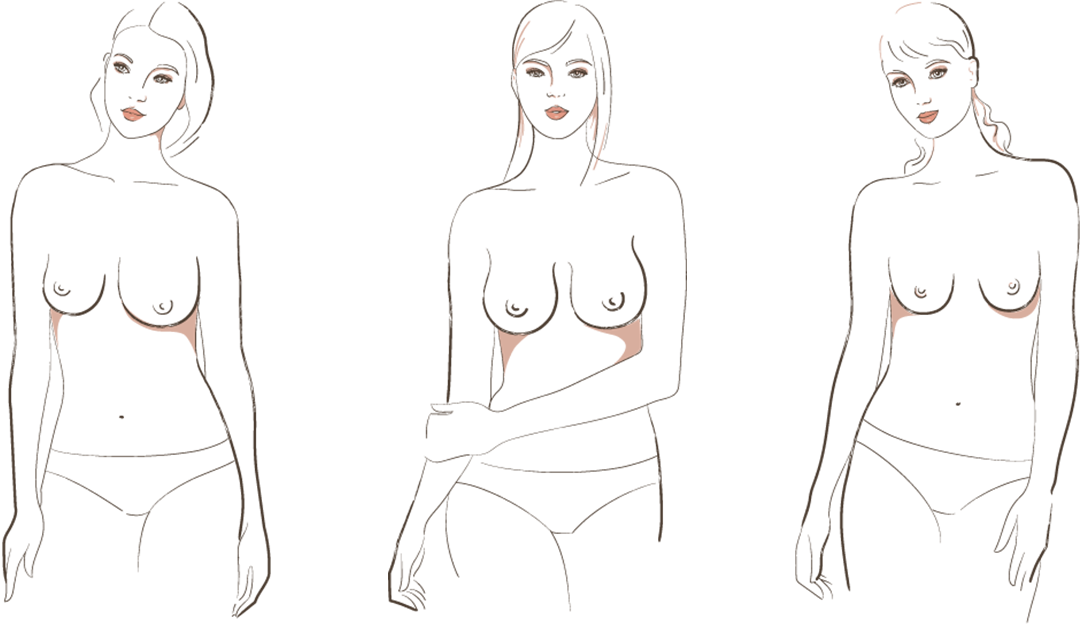 Breast shapes