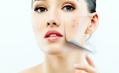How to best treat Acne scars