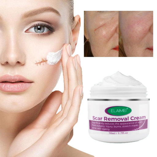 Scar Removal Cream - MyLunaShop