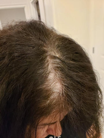 My Gray Hair Before the Two Steps