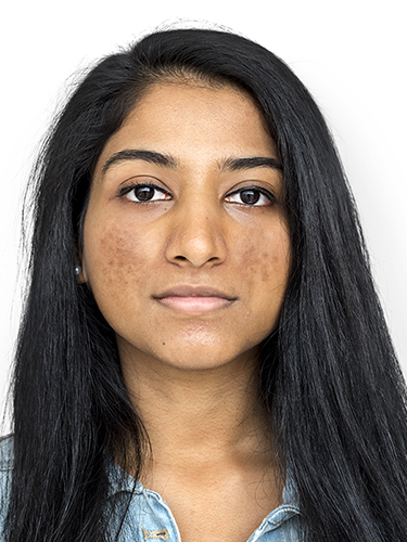 5 Habits to Quit when You Have the Hyperpigmentation Skin Condition
