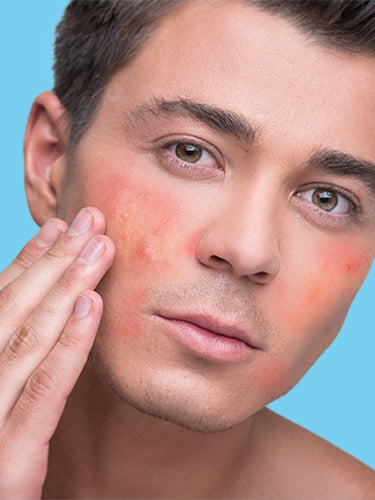 5 Ingredients To Avoid If You Have Sensitive Skin